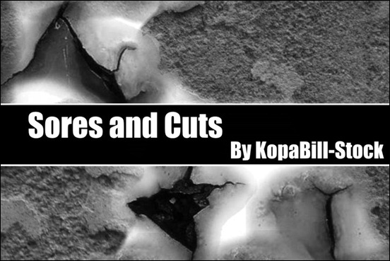 sores-and-cuts-brushes